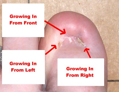 how long new toenail to grow